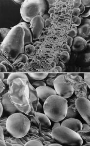 glandes à sel d'Atriplex